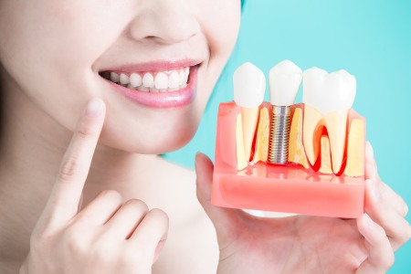dental implants wyndham vale